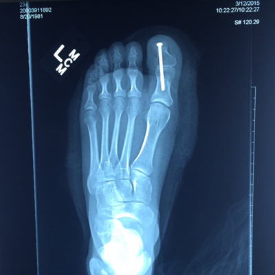 foot xray screw in fused toe joint web